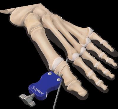 Akin osteotomy 0 large