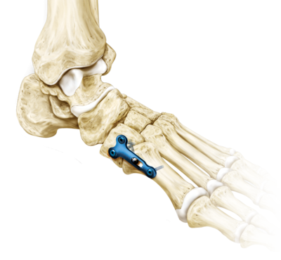 Midtarsal fracture repair 0 large