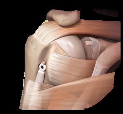 Tenodesis procedure 0 large